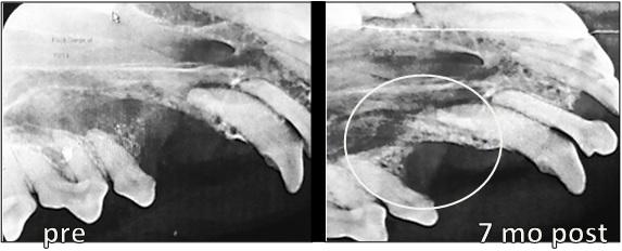 VTS Allograft Bone Membrane Oronasal Fistula Dentistry 7months Radiographs 2
