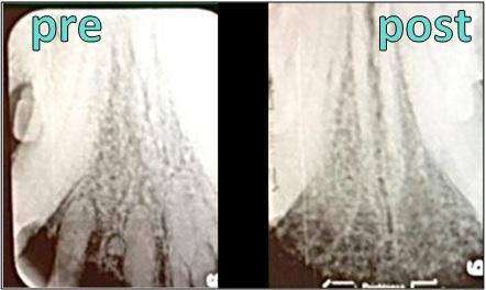 VTS Xenograft Orthomix Dental Extraction Radiograph Mandible