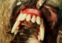 Fascia Membrane Graft in Place Over Periomix® on Maxilla